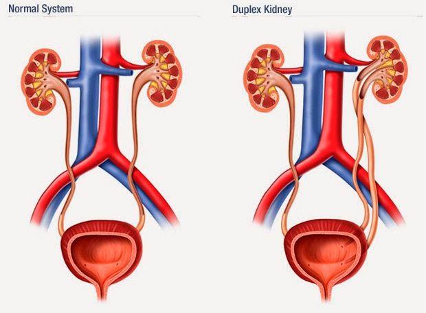 sintomi dolore renale duplex