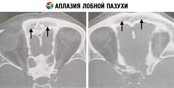agenesia del setto nasale