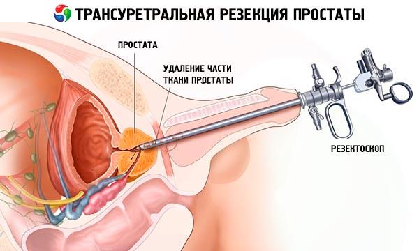 ciò che è interessato quando viene rimossa la prostata