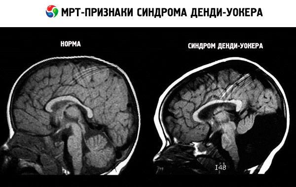 agenesia seni paranasali mal riguardo testa