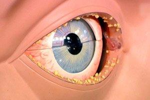 infezione del seno oculista